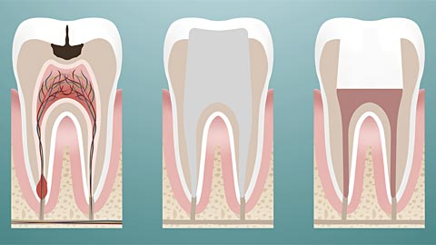 Root Canal Therapy | Alicia G  Rodriguez, DDS, MAGD